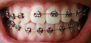 Traitement d'orthodontie